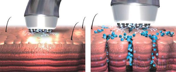 Безинъекционная мезотерапия в салоне Грааль