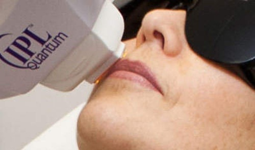 Лазерная эпиляция верхней губы в салоне Грааль