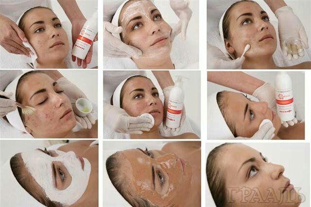 Лечение кожи в салоне Грааль