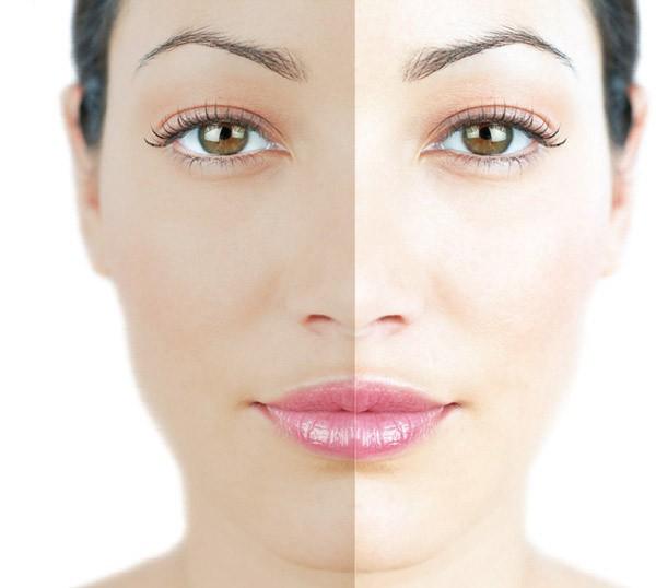 Осветление кожи лица в салоне Грааль