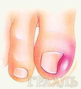 Удаление вросших ногтей в салоне красоты «ГРААЛЬ»